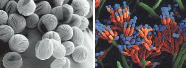 Foto: REMMERS, kultura plísně pod mikroskopem a spóry plísně zblízka