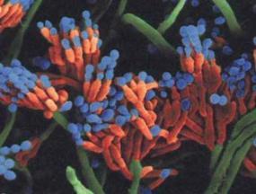 Obr: Remmers,  záběr zblízka na spóry plísní
